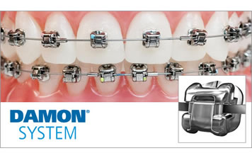 Tecnología de Autoligado Pasivo Damon Q®